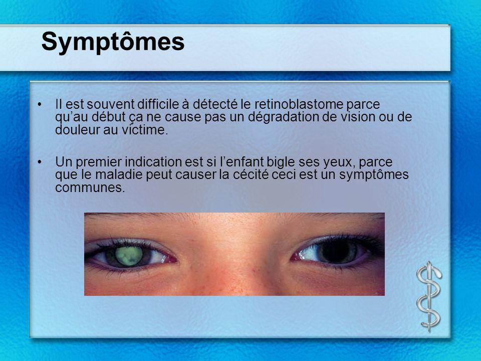Symptômes Il est souvent difficile à détecté le retinoblastome parce quau début ça ne cause pas un dégradation de vision ou de douleur au victime.