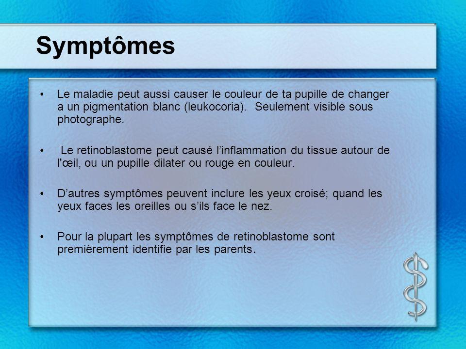 Symptômes Le maladie peut aussi causer le couleur de ta pupille de changer a un pigmentation blanc (leukocoria).
