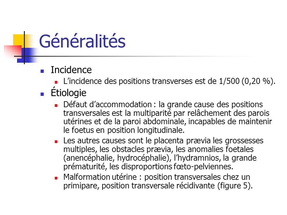 Incidence Lincidence des positions transverses est de 1/500 (0,20 %).