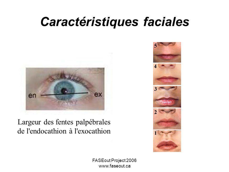 FASEout Project 2006 www.faseout.ca Caractéristiques faciales Largeur des fentes palpébrales de l'endocathion à l'exocathion