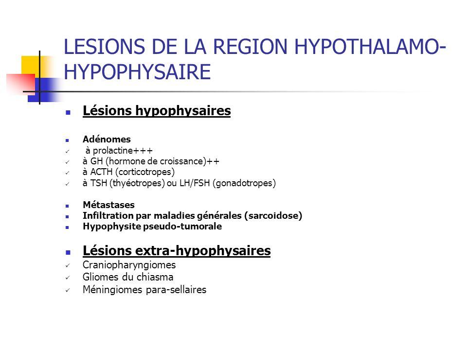 LESIONS DE LA REGION HYPOTHALAMO- HYPOPHYSAIRE Lésions hypophysaires Adénomes à prolactine+++ à GH (hormone de croissance)++ à ACTH (corticotropes) à