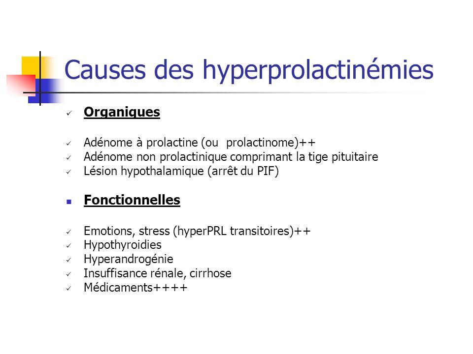 Causes des hyperprolactinémies Organiques Adénome à prolactine (ou prolactinome)++ Adénome non prolactinique comprimant la tige pituitaire Lésion hypo
