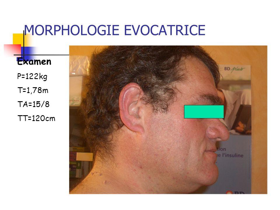 MORPHOLOGIE EVOCATRICE Examen P=122kg T=1,78m TA=15/8 TT=120cm