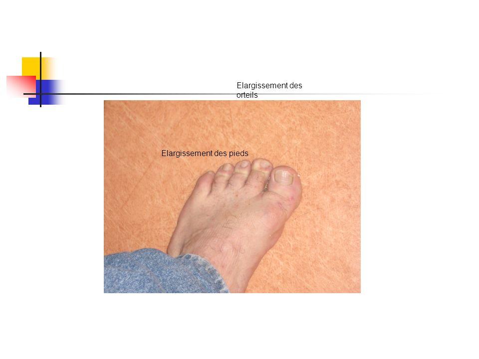 Elargissement des orteils Elargissement des pieds