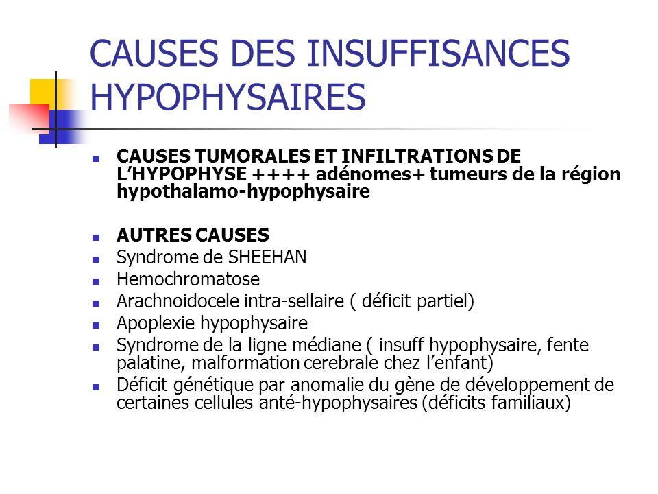 CAUSES DES INSUFFISANCES HYPOPHYSAIRES CAUSES TUMORALES ET INFILTRATIONS DE LHYPOPHYSE ++++ adénomes+ tumeurs de la région hypothalamo-hypophysaire AU