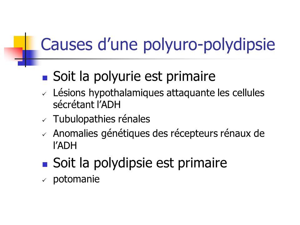 Causes dune polyuro-polydipsie Soit la polyurie est primaire Lésions hypothalamiques attaquante les cellules sécrétant lADH Tubulopathies rénales Anom