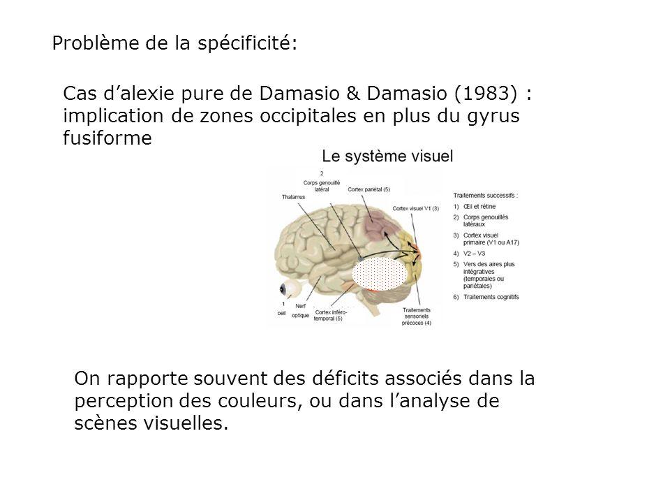 Cohen et al. 2002 : une lésion localisée au niveau du gyrus fusiforme entraîne une alexie pure. Cest la Visual Word Form Area = zone de la perception