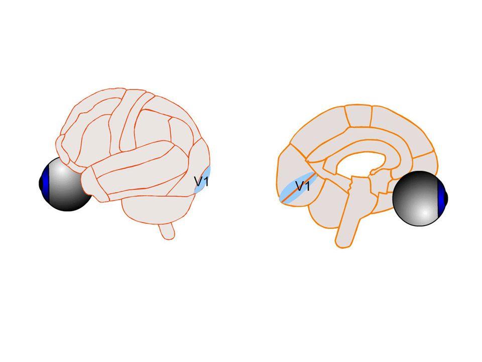 Interprétation classique de lalexie : syndrome de déconnexion. Les aires visuelles occipitales et les aires du langage situées dans les régions tempor