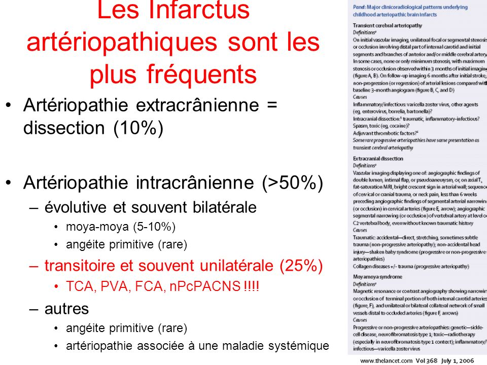 Les Infarctus artériopathiques sont les plus fréquents Artériopathie extracrânienne = dissection (10%) Artériopathie intracrânienne (>50%) –évolutive