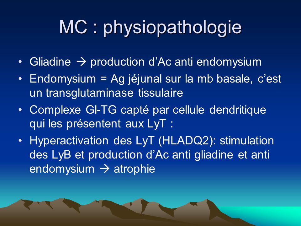MC : physiopathologie Gliadine production dAc anti endomysium Endomysium = Ag jéjunal sur la mb basale, cest un transglutaminase tissulaire Complexe Gl-TG capté par cellule dendritique qui les présentent aux LyT : Hyperactivation des LyT (HLADQ2): stimulation des LyB et production dAc anti gliadine et anti endomysium atrophie
