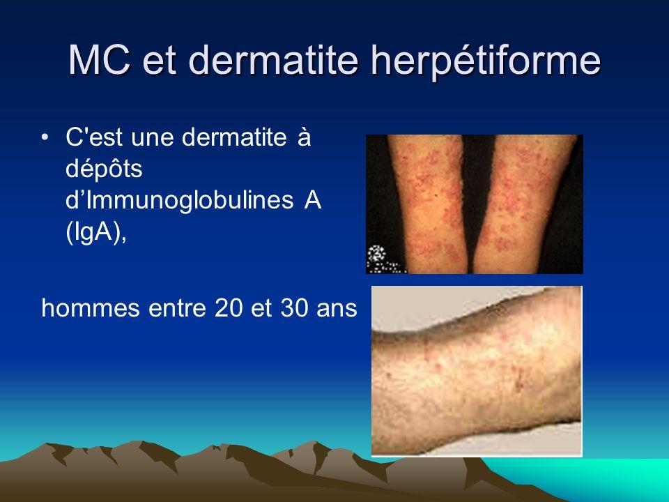 MC et dermatite herpétiforme C'est une dermatite à dépôts dImmunoglobulines A (IgA), hommes entre 20 et 30 ans