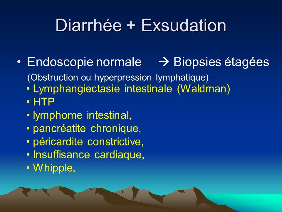 Endoscopie normale Biopsies étagées (Obstruction ou hyperpression lymphatique) Lymphangiectasie intestinale (Waldman) HTP lymphome intestinal, pancréatite chronique, péricardite constrictive, Insuffisance cardiaque, Whipple, Diarrhée + Exsudation