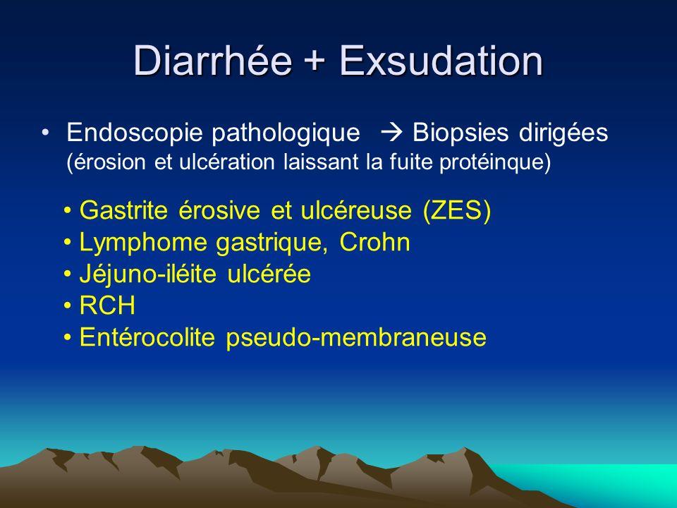 Endoscopie pathologique Biopsies dirigées (érosion et ulcération laissant la fuite protéinque) Diarrhée + Exsudation Gastrite érosive et ulcéreuse (ZES) Lymphome gastrique, Crohn Jéjuno-iléite ulcérée RCH Entérocolite pseudo-membraneuse