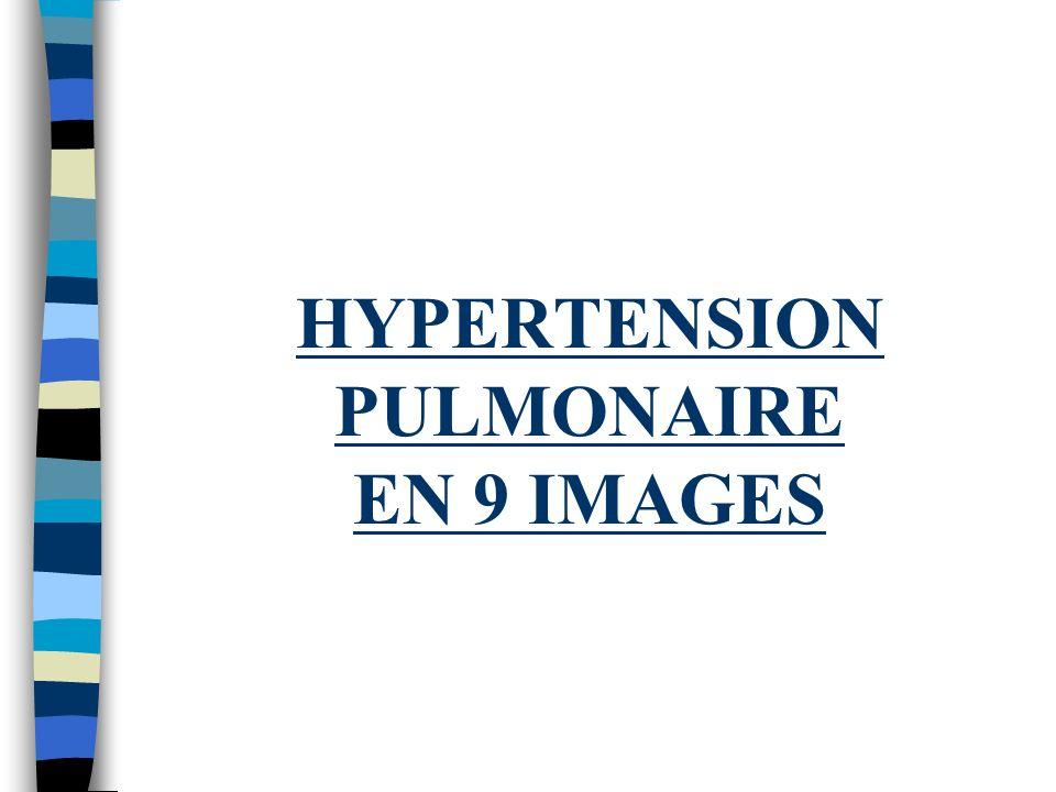 Hypertension Pulmonaire (Partie II) Marc Engfield, MD, FRCPC Médecine Interne