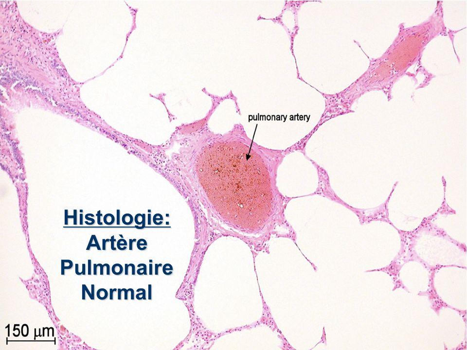 HYPERTENSION PULMONAIRE EN 9 IMAGES