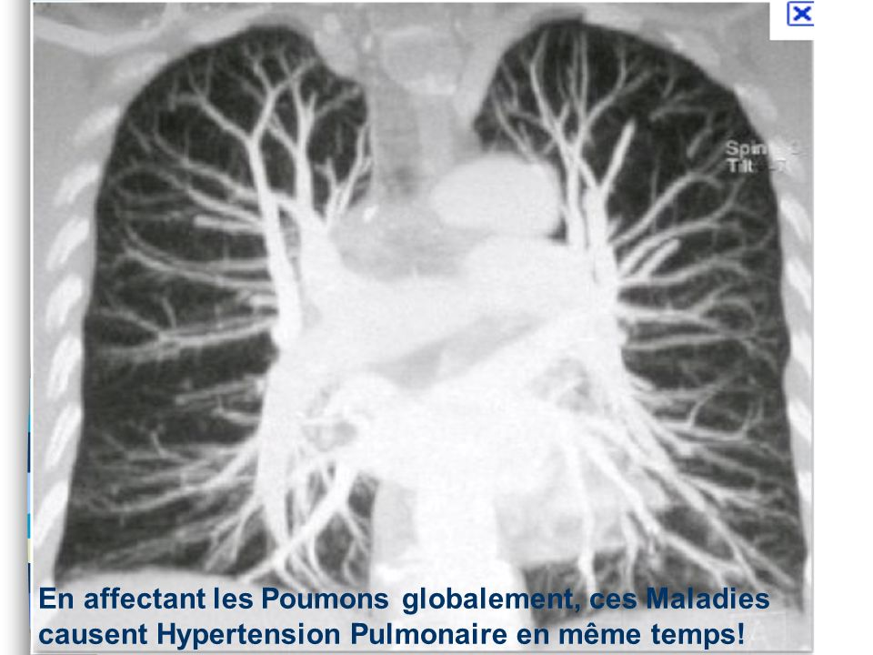 Vasoconstriction Hypoxémique