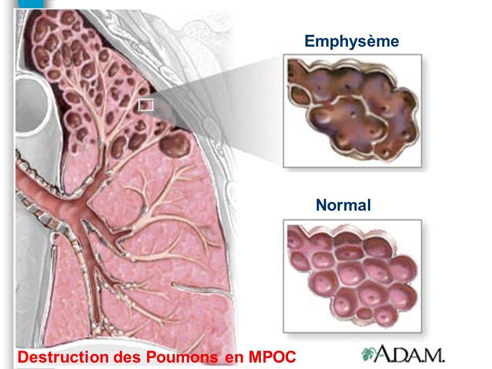 Groupe 3: n MPOC –destruction des poumons n Pneumopathie interstitielle n Apnée du sommeil n Altitude