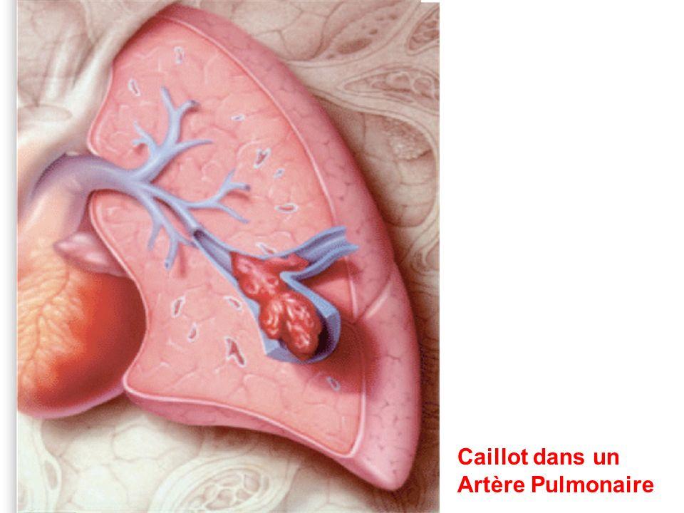 P HYSIOPATHOLOGIE Groupe 4: Emboli pulmonaire