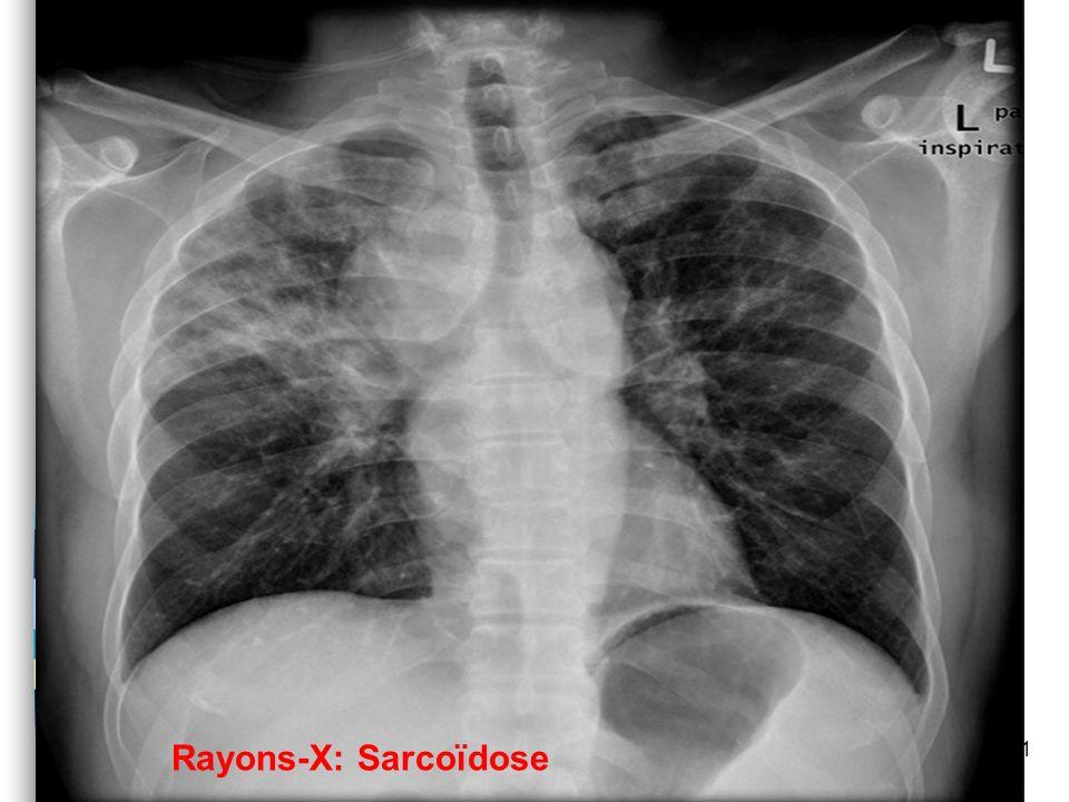 Groupe 5: Causes dHP n Hypothyroïdie Viscosite du sang: –Polycythémie Vera –Thrombocytopénie n Maladies Inflammatoires –Sarcoïdose –Vasculite n Tumeur