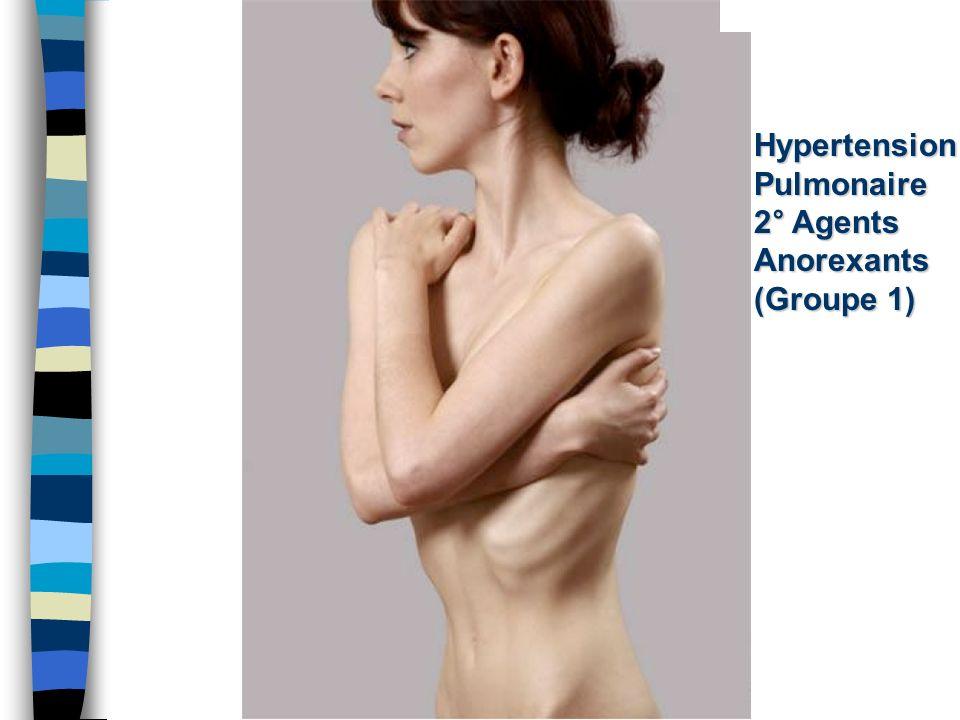 44 Hypertension Pulmonaire 2° Apnée du Sommeil (Groupe 3)