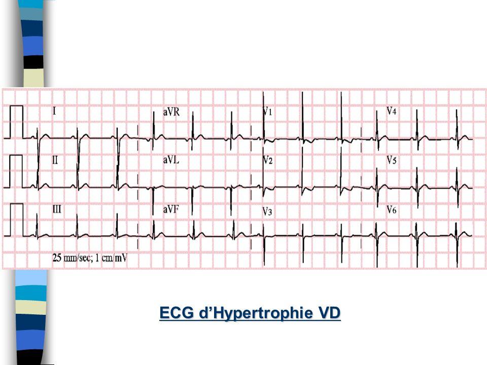 Clinique n Hypertrophie VD –Soulèvement ventricule D –B 2 fort n Défaillance Coeur D –Distension veine jugulaire –Oedème périphérique