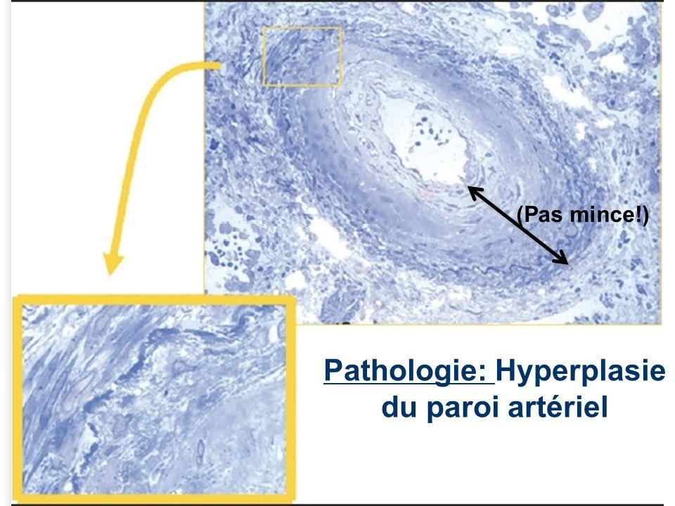 4 Histologie: Paroi normal de lArtère (Mince!)