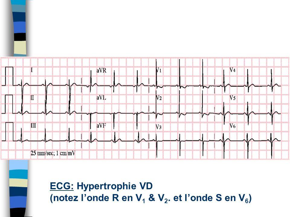 HypertensionPulmonaire peut causer Hypertrophie VD
