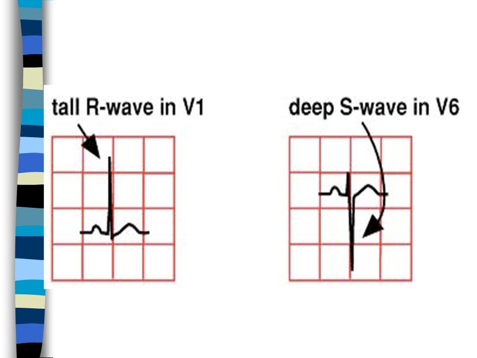 ECG: Hypertrophie VD (notez londe R en V 1 & V 2. et londe S en V 6 )