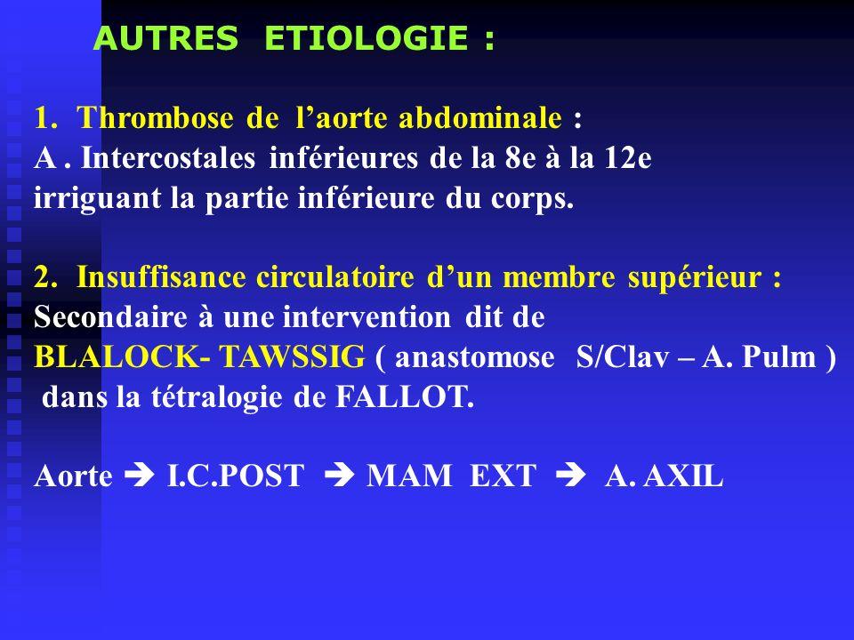 AUTRES ETIOLOGIE : 1.Thrombose de laorte abdominale : A. Intercostales inférieures de la 8e à la 12e irriguant la partie inférieure du corps. 2.Insuff