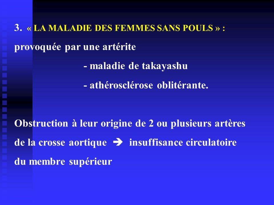 3. « LA MALADIE DES FEMMES SANS POULS » : provoquée par une artérite - maladie de takayashu - athérosclérose oblitérante. Obstruction à leur origine d