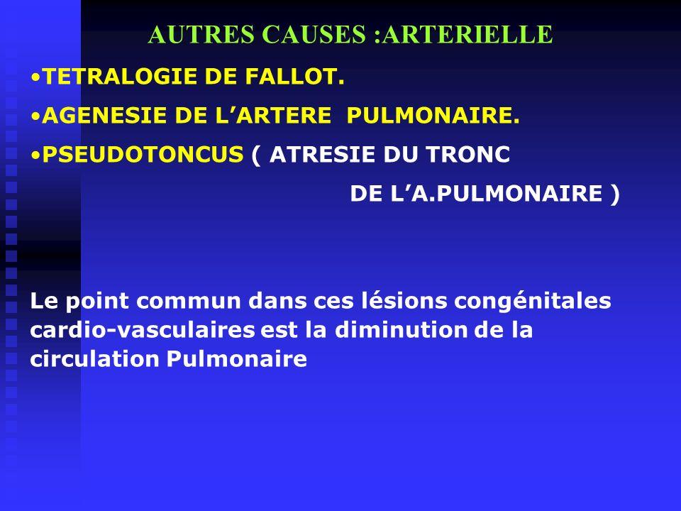 AUTRES CAUSES :ARTERIELLE TETRALOGIE DE FALLOT. AGENESIE DE LARTERE PULMONAIRE. PSEUDOTONCUS ( ATRESIE DU TRONC DE LA.PULMONAIRE ) Le point commun dan