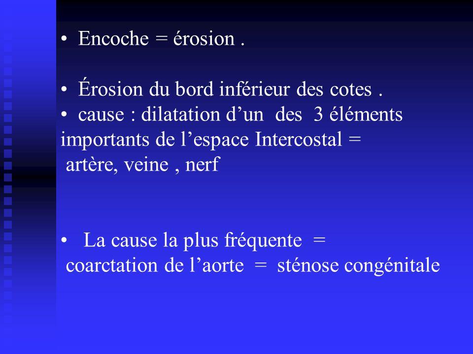 Encoche = érosion. Érosion du bord inférieur des cotes. cause : dilatation dun des 3 éléments importants de lespace Intercostal = artère, veine, nerf