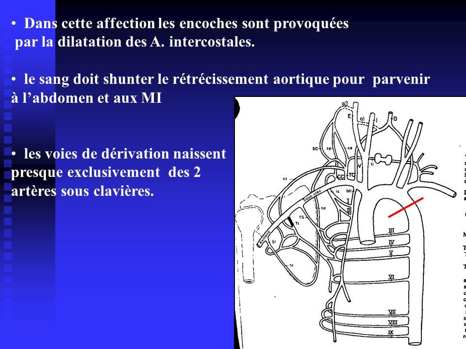 Dans cette affection les encoches sont provoquées par la dilatation des A. intercostales. le sang doit shunter le rétrécissement aortique pour parveni