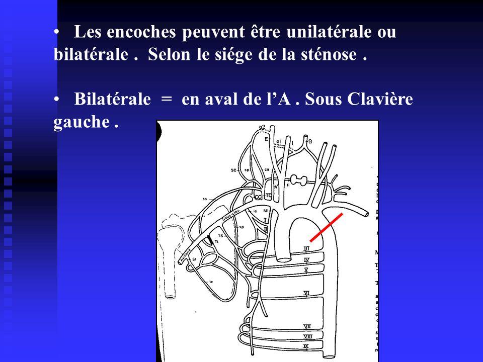 Les encoches peuvent être unilatérale ou bilatérale. Selon le siége de la sténose. Bilatérale = en aval de lA. Sous Clavière gauche.