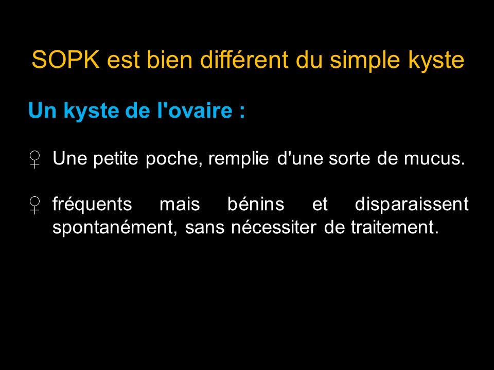 SOPK est bien différent du simple kyste Un kyste de l'ovaire : Une petite poche, remplie d'une sorte de mucus. fréquents mais bénins et disparaissent