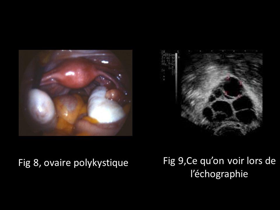 Fig 8, ovaire polykystique Fig 9,Ce quon voir lors de léchographie