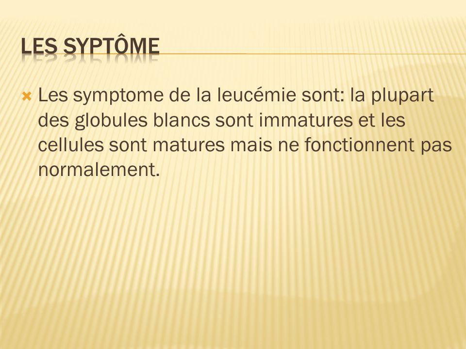 Les symptome de la leucémie sont: la plupart des globules blancs sont immatures et les cellules sont matures mais ne fonctionnent pas normalement.