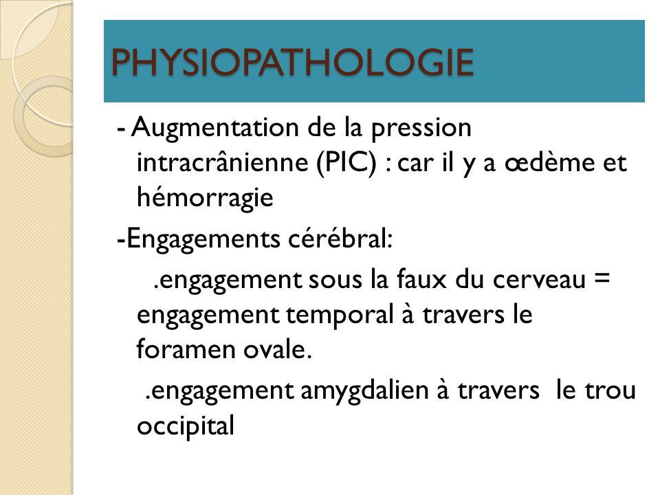 PHYSIOPATHOLOGIE - Augmentation de la pression intracrânienne (PIC) : car il y a œdème et hémorragie -Engagements cérébral:.engagement sous la faux du
