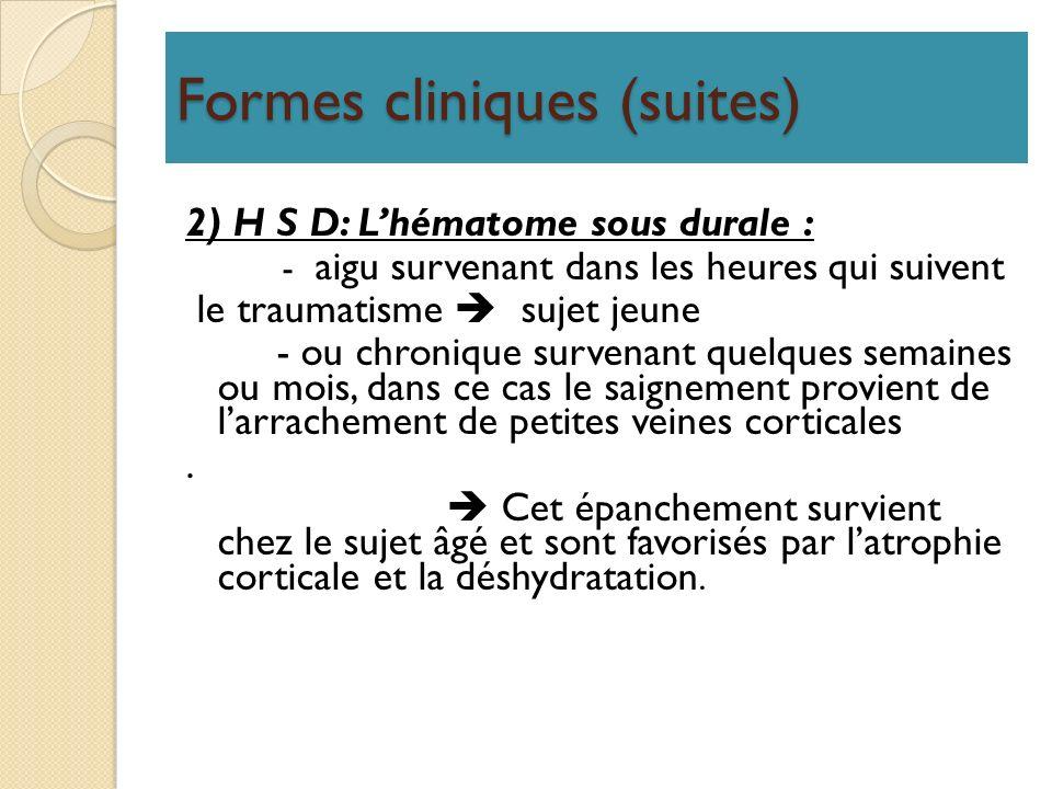Formes cliniques (suites) 2) H S D: Lhématome sous durale : - aigu survenant dans les heures qui suivent le traumatisme sujet jeune - ou chronique sur