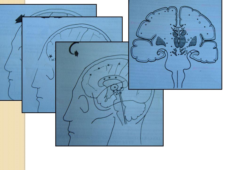 Formes cliniques (suites) 3) les plaies crânio-cérébrales PCC : - Ont un risque constant: Linfection car il existe une souillure du parenchyme cérébral.