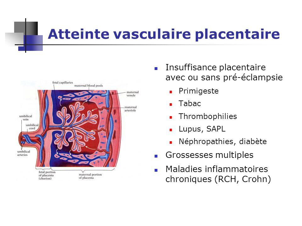 Atteinte vasculaire placentaire Insuffisance placentaire avec ou sans pré-éclampsie Primigeste Tabac Thrombophilies Lupus, SAPL Néphropathies, diabète