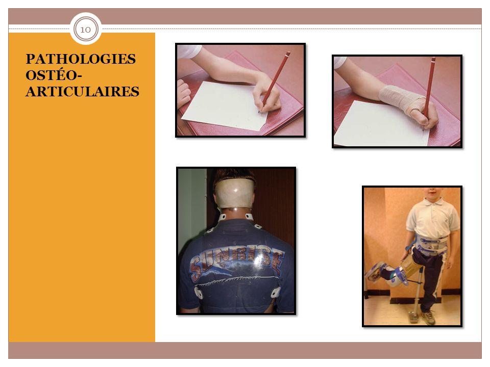 Pathologies ostéo- articulaires : quelques exemples malformation (absence ou anomalie dun membre) lésions rhumatismales (arthrite juvénile idiopathique) déviations de la colonne vertébrale (scoliose) anomalie de la formation de los (ostéogenèse imparfaite) 11