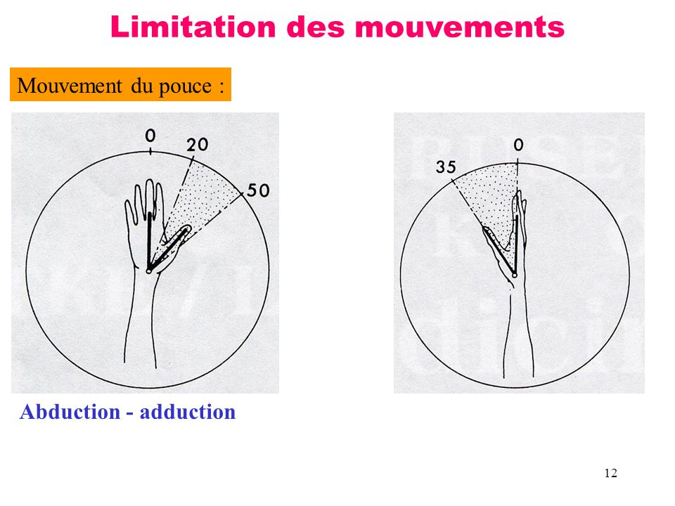 12 Mouvement du pouce : Abduction - adduction Limitation des mouvements