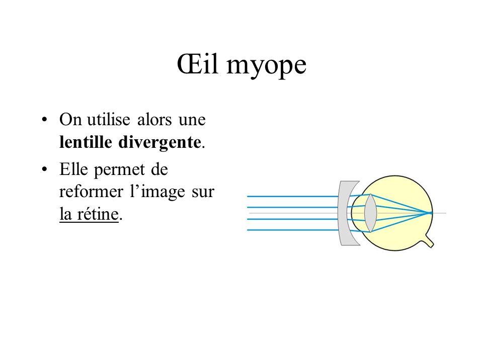 Œil myope On utilise alors une lentille divergente. Elle permet de reformer limage sur la rétine.