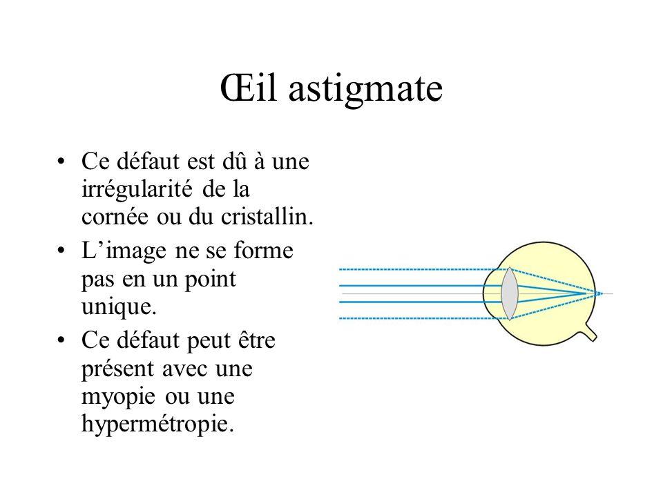 Œil astigmate Ce défaut est dû à une irrégularité de la cornée ou du cristallin. Limage ne se forme pas en un point unique. Ce défaut peut être présen