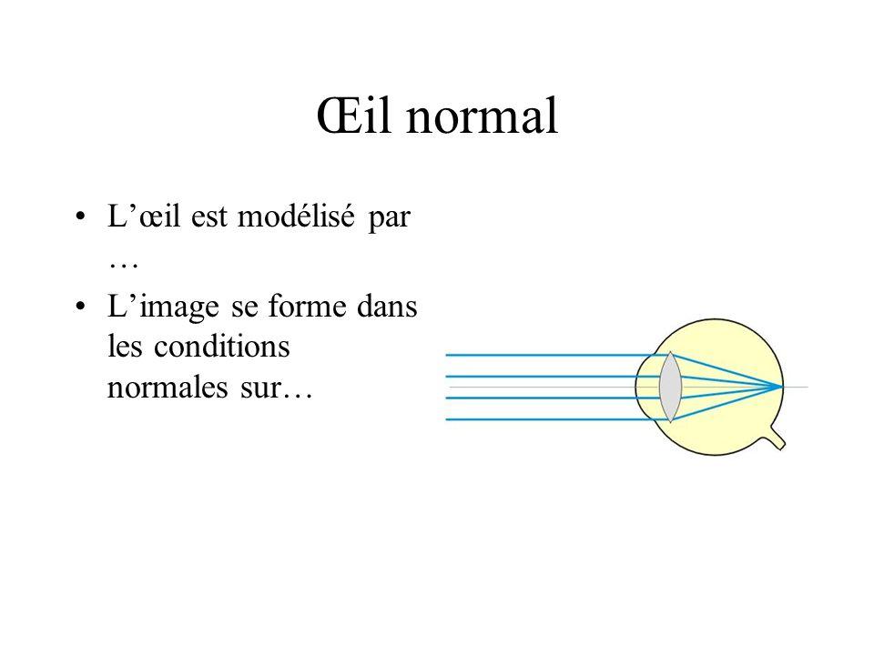 Œil normal Lœil est modélisé par … Limage se forme dans les conditions normales sur…