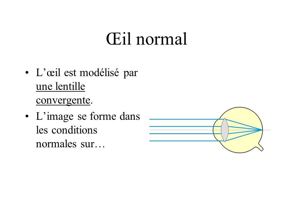 Œil normal Lœil est modélisé par une lentille convergente. Limage se forme dans les conditions normales sur…