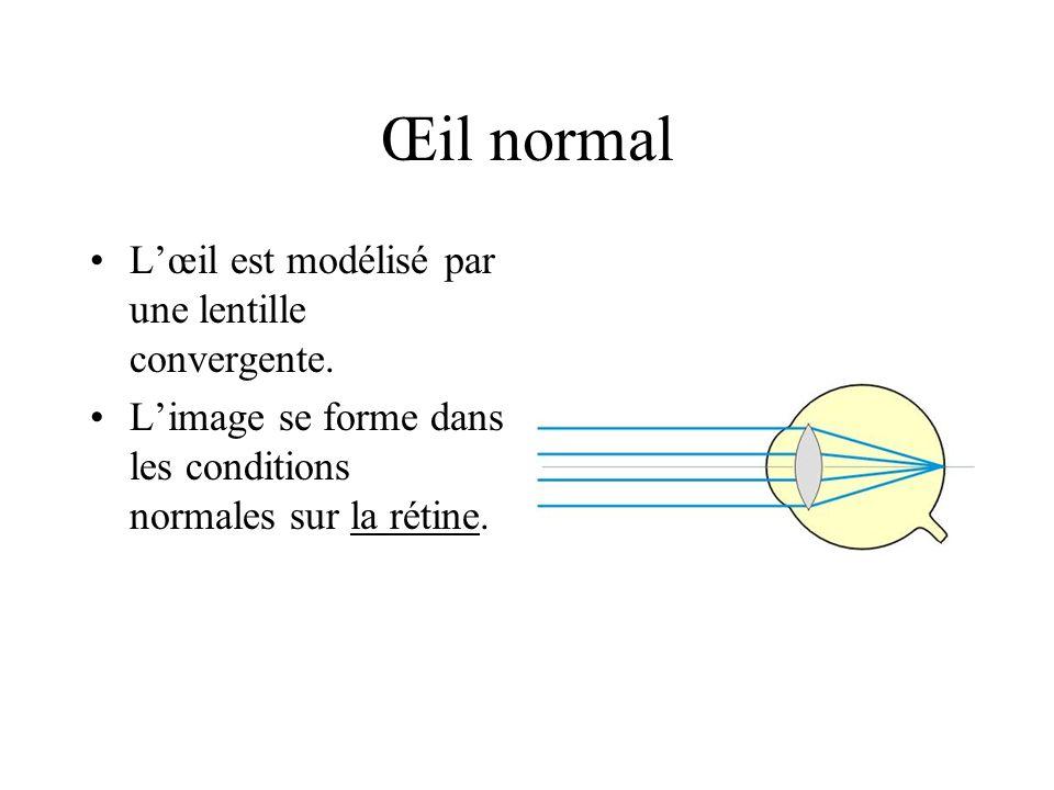 Œil normal Lœil est modélisé par une lentille convergente. Limage se forme dans les conditions normales sur la rétine.