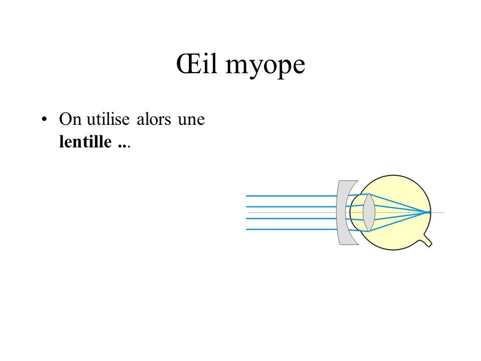 Œil myope On utilise alors une lentille...