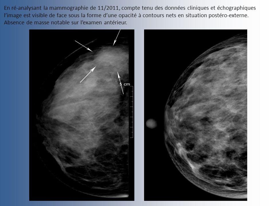 En ré-analysant la mammographie de 11/2011, compte tenu des données cliniques et échographiques limage est visible de face sous la forme dune opacité